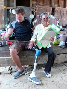 cambodia_amputee_assistance_theropy_435