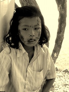 cambodia_amputee_assistance_theropy_455