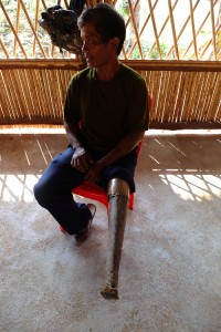 cambodia_amputee_assistance_theropy_570